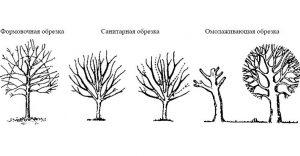 obrezka-derevev-kustarnikov-4